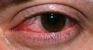 injected red eye infection treatment at Modern Eyes Optometry in cerritos ca